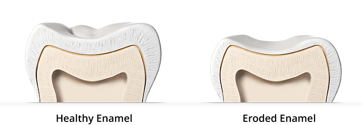 Healthy Enamel versus Eroded Enamel